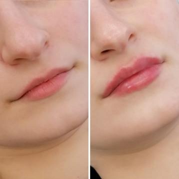 Контурная коррекция губ